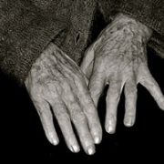 Elderly suffer from malnutrition